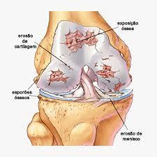 OSTEOARTROSE X CORRIDA